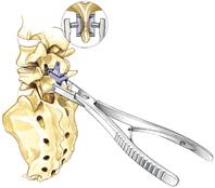 Установка импланта/импакция
